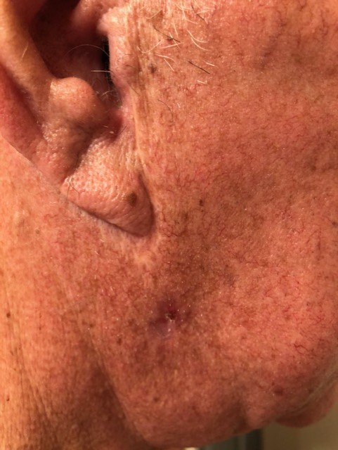 Caught early, Leslie's pictured melanoma was quickly operated on in order to remove the cancer from his body.