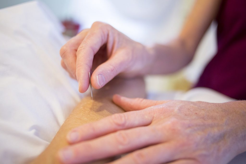 Acupuncture is a newly covered treatment Medicare beneficiaries will be able to undergo in 2021.